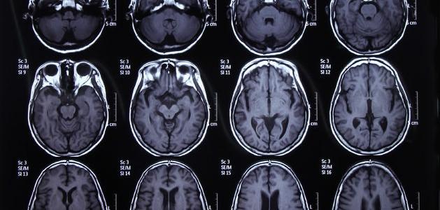 TXL Phytoceutical Obat Kanker Integratif