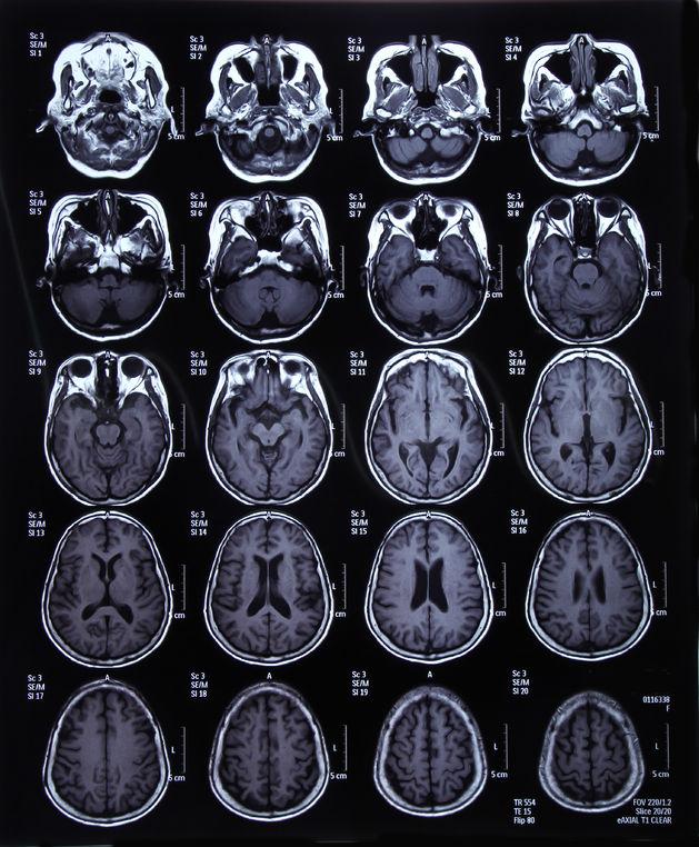 Cara Mengobati Kanker Otak Paling Aman dan Efektif