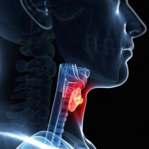 TXL Obat Kanker Tenggorokan| Teruji Klinis, Aman dan Efektif